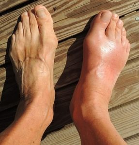 List Of Foods To Avoid With Gout