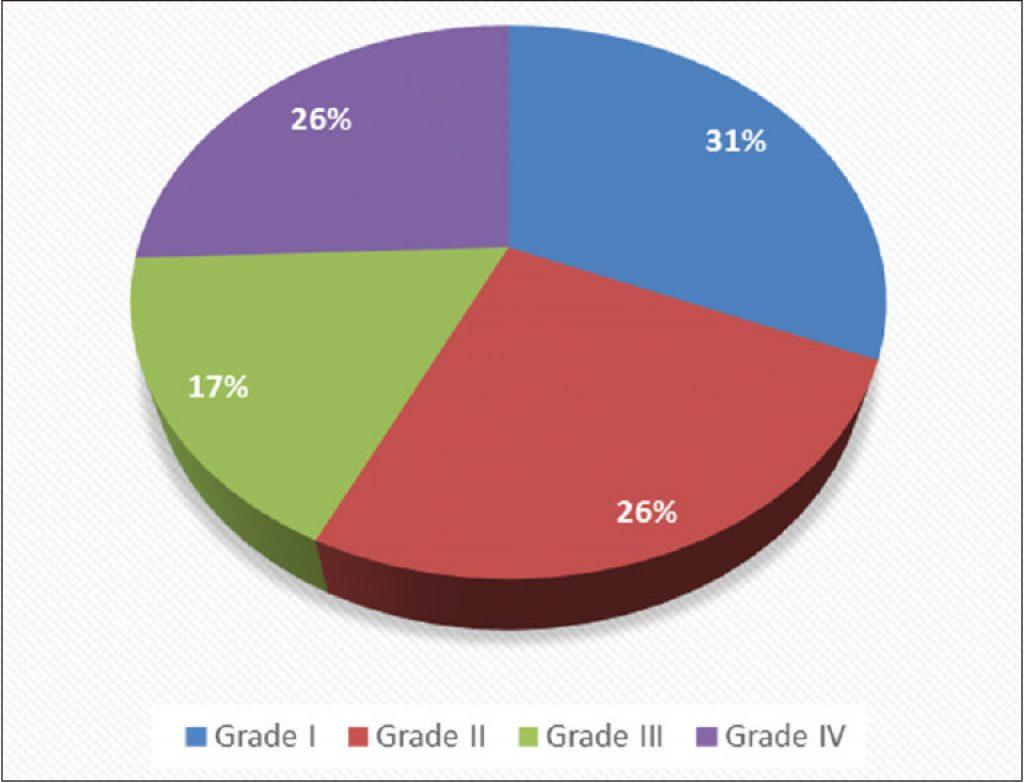 Grades of Prolapsed Hemorrhoids