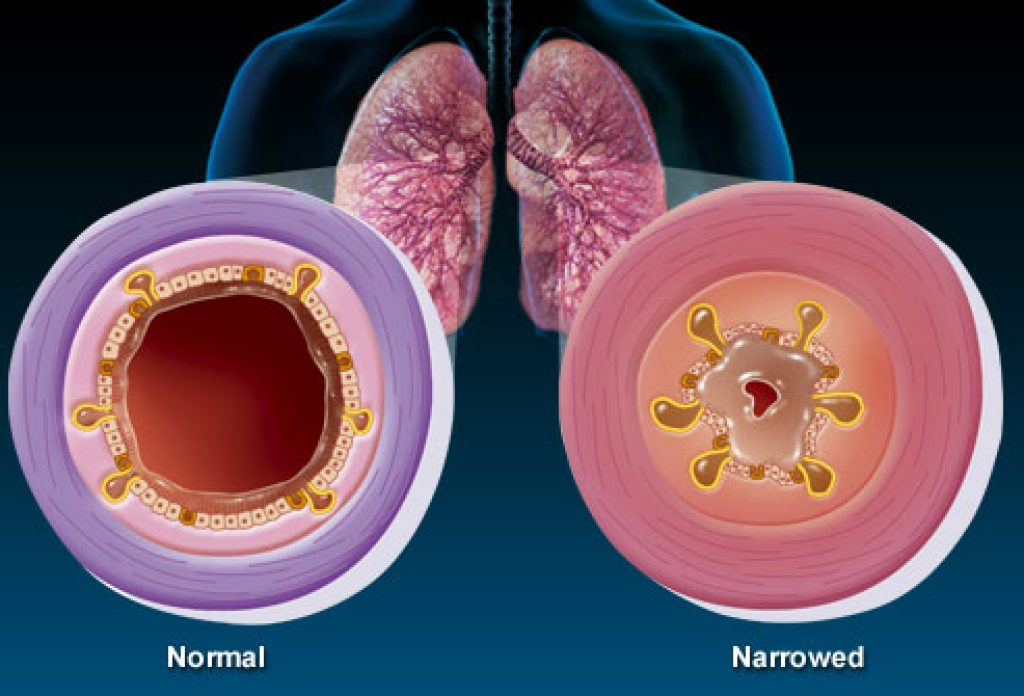 What-is-bronchitis