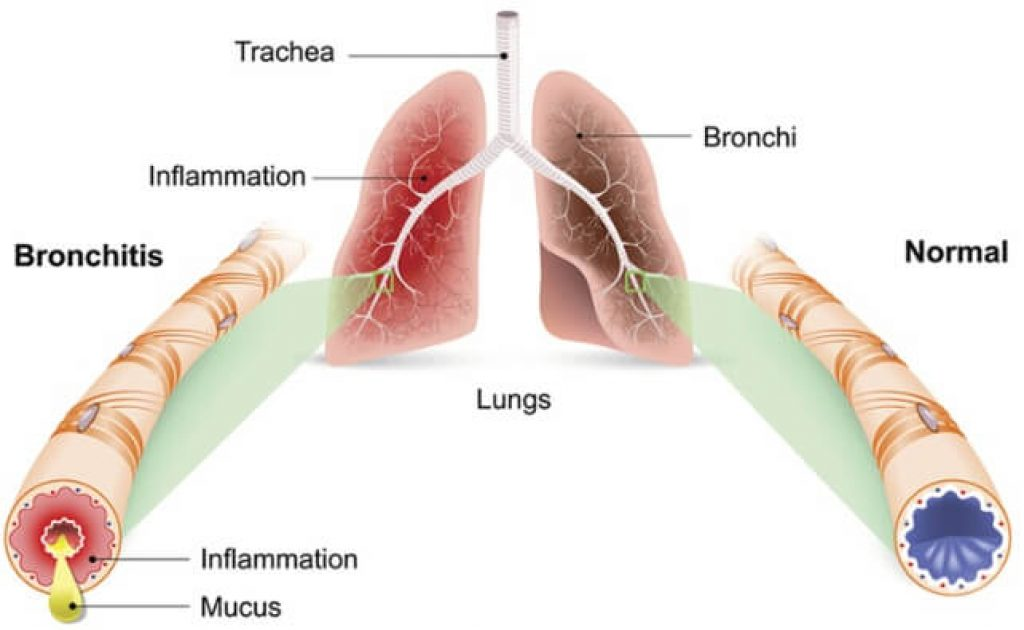 What is Bronchiolitis