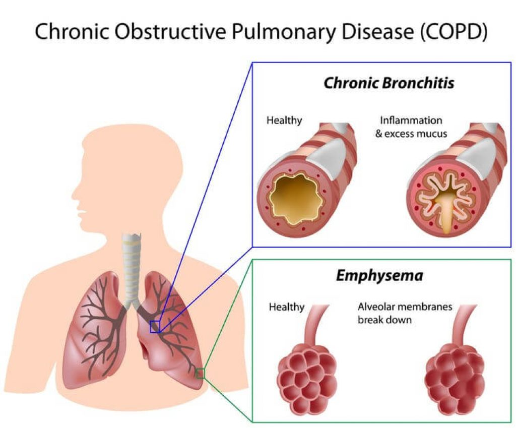 copd-chronic obstructive pulmonary disease