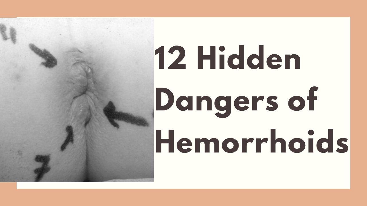 12 Hidden Dangers Of Hemorrhoids Colon Cancer Hemorrhoids Are Same