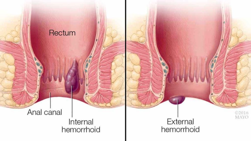 hemorrhoid cancer pictures