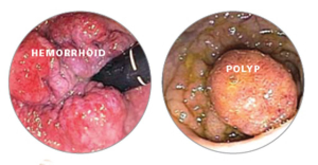 Ulcerated Hemorrhoids Pictures